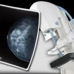 Is the radiation exposure from getting a mammogram harmful?